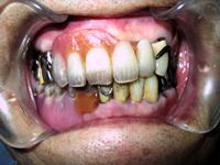 通常の義歯